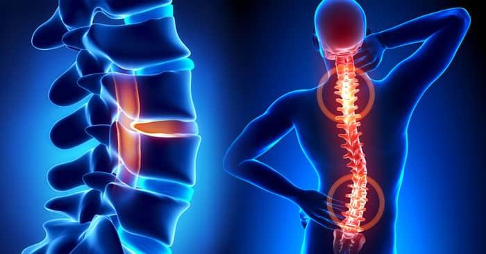 Гимнастика для позвоночника при остеохондрозе и сколиозе -