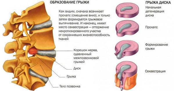 Профилактика остеохондроза: как избежать грыжи поясничного отдела?